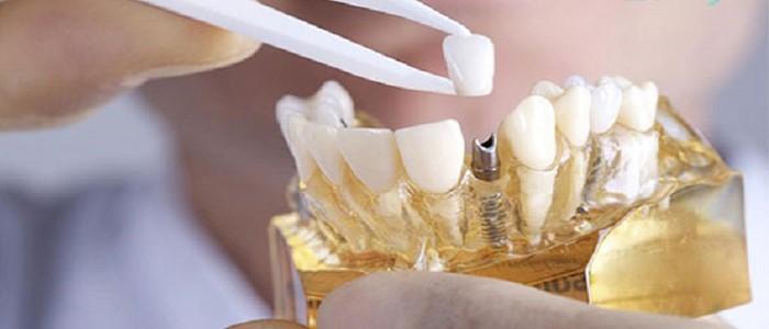 بهترین مارک ایمپلنت دندان