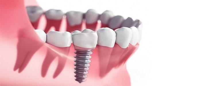 معرفی بهترین مارک ایمپلنت دندان