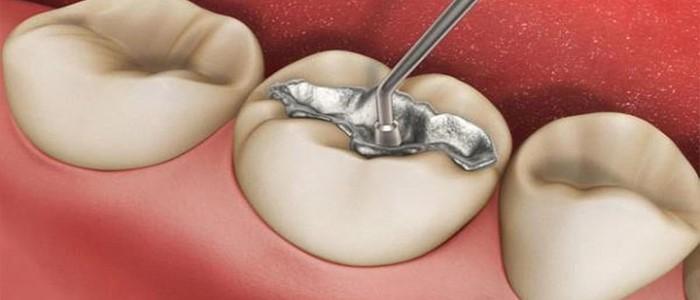 درد دندان پر شده