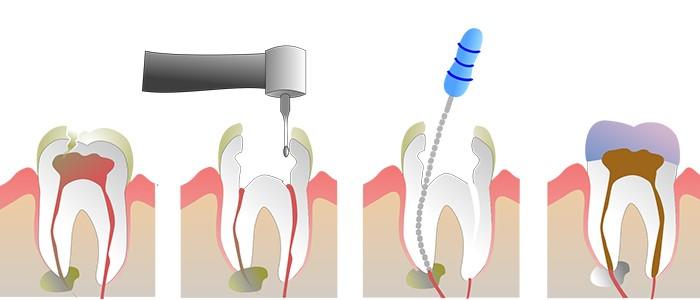 پروسه درمان ریشه دندان به چه صورت است؟
