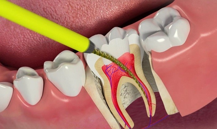 درمان زخم لثه بعد از کشیدن دندان