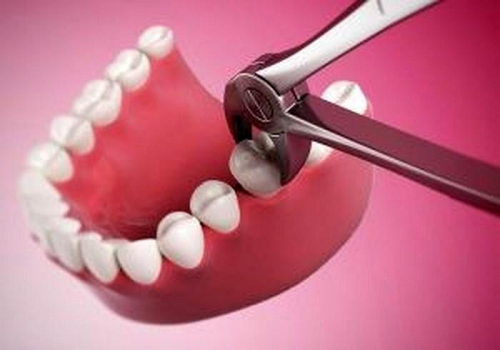 هزینه کشیدن دندان عقل در سال 1400