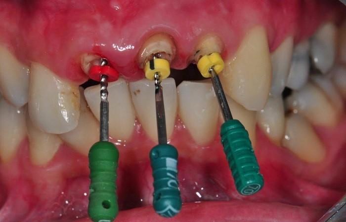 عصب کشی دندان چیست