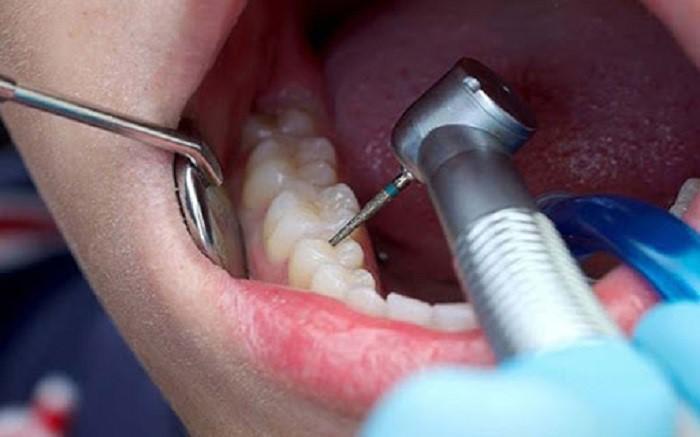 عصب کشی و پرکردن همزمان دندان ۹۹