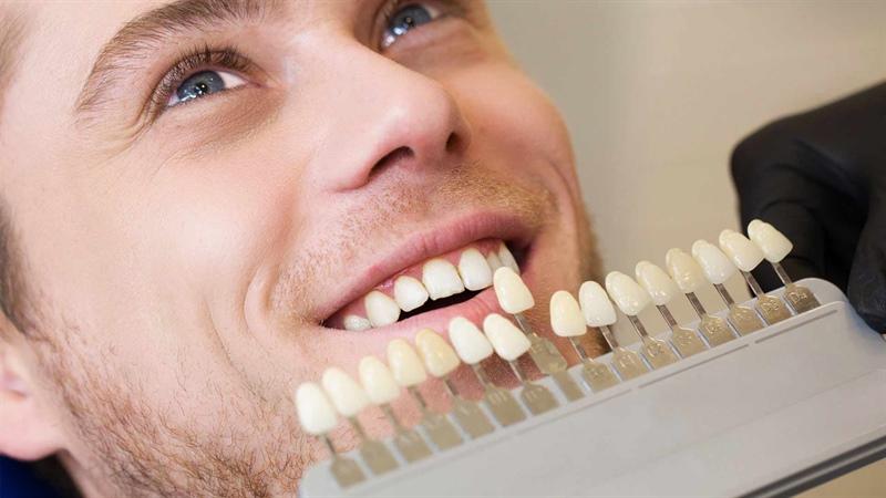 بهترین لمینت دندان