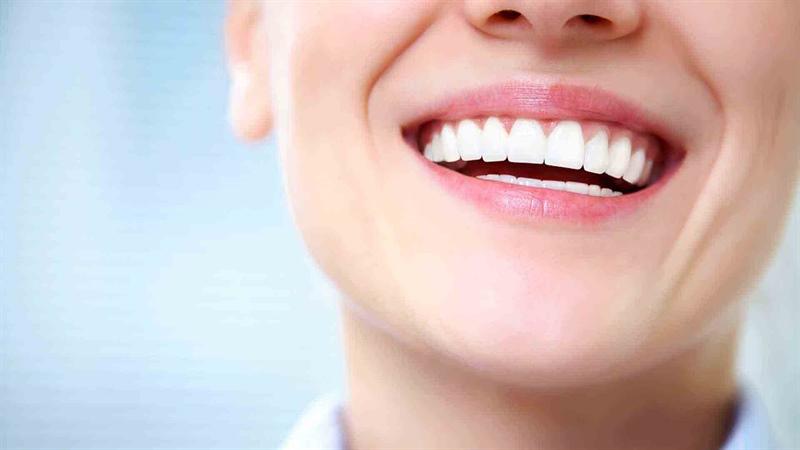انواع روکش های دندان